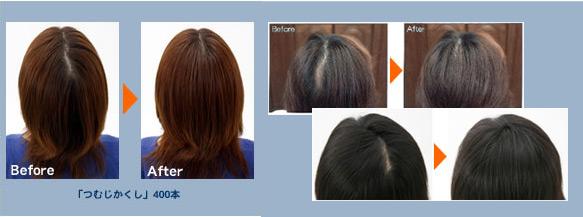 hair,yuri.net. 髪型 薄毛の髪型 女性